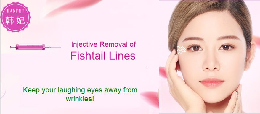 fishtail wrinkle removal