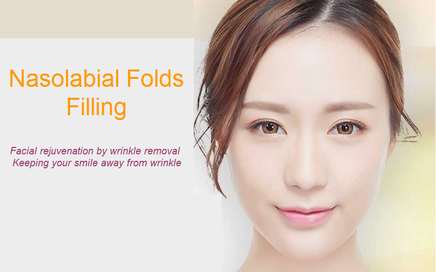 nasolabial folds filling