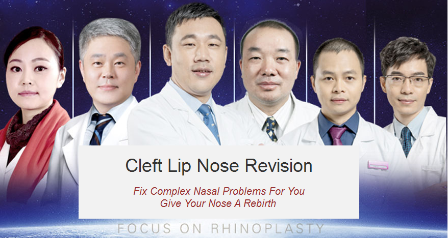 Cleft Lip Nose Revision