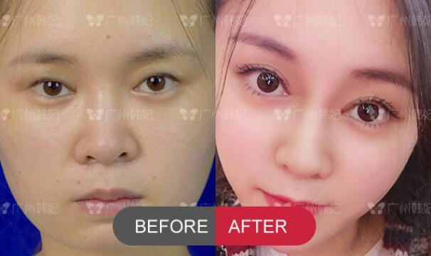 double eyelids surgery and autologous fat face filling