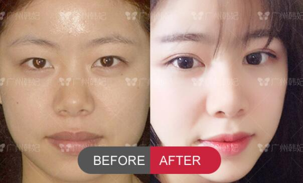 double eyelids surgery and rhinoplasty