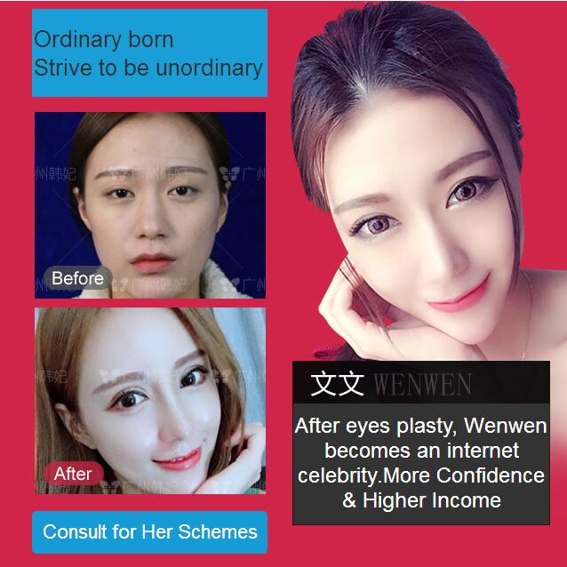 After eyes plasty, Wenwen becomes an internet celebrity.More Confidence & Higher Income